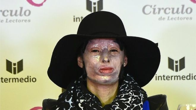 Natalia Ponce wears a mask to protect her face which was severely burned in an acid attack